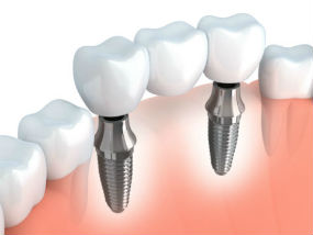 Implant Dentistry | Middlebury Dental Group | Dentist Watertown, CT
