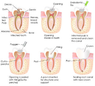 Root Canal Therapy | Middlebury Dental Group | Dentist Watertown, CT