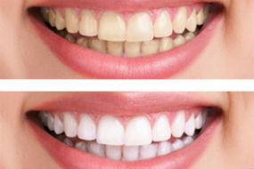 Teeth Whitening | Middlebury Dental Group | Middlebury Dentist