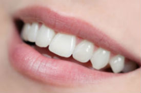 Porcelain Veneers | Middlebury Dental Group | Middlebury Dentist
