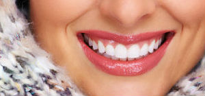 Composite Fillings | Middlebury Dental Group | Dentist Naugatuck, CT