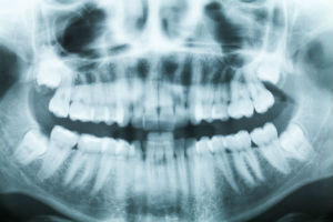 Digital X-Rays | Watertown Dentist