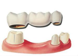 Bridges | Middlebury Dental Group | Dentist Naugatuck, CT