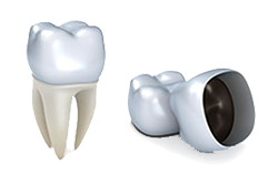Crowns and Caps | Middlebury Dental Group | Dentist Naugatuck, CT