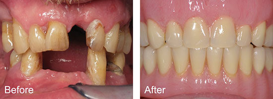 Middlebury Dental Group - Before & After Smile Gallery